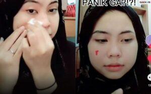 Bikin Merinding, Cewek Ini Tiba-Tiba Pipinya Berdarah Saat Sedang Bersihkan Make Up